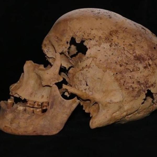 Kanker Masa Prasejarah - Historia